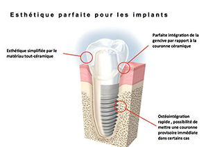 Implant dentaire La Garenne-Colombes